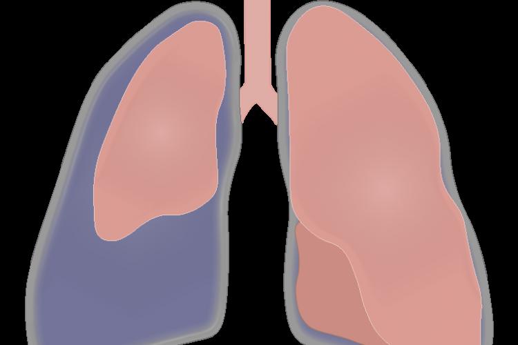 Pneumothorax : Test yourself