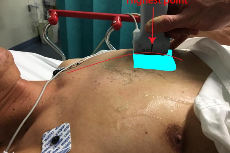 Pneumothorax : Where do we place the probe?
